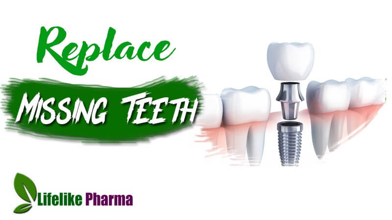 Dental Smart Implants Choice for Replacing Missing Teeth