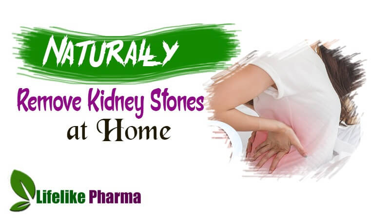 Remove Kidney Stones Naturally at Home