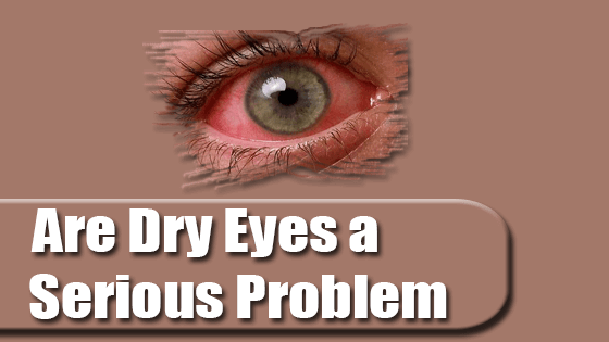Are Dry Eyes a Serious Problem