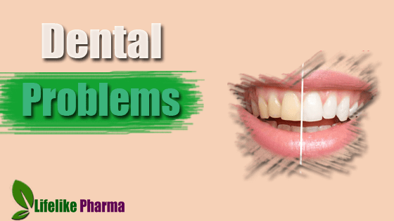 Solutions to the Top 10 Dental Problems