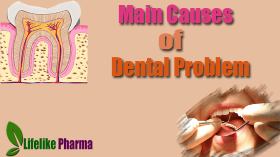 What Are the Main Causes of Dental Problem