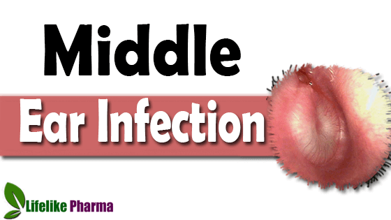 Otitis Media (Middle Ear Infection) in Adults